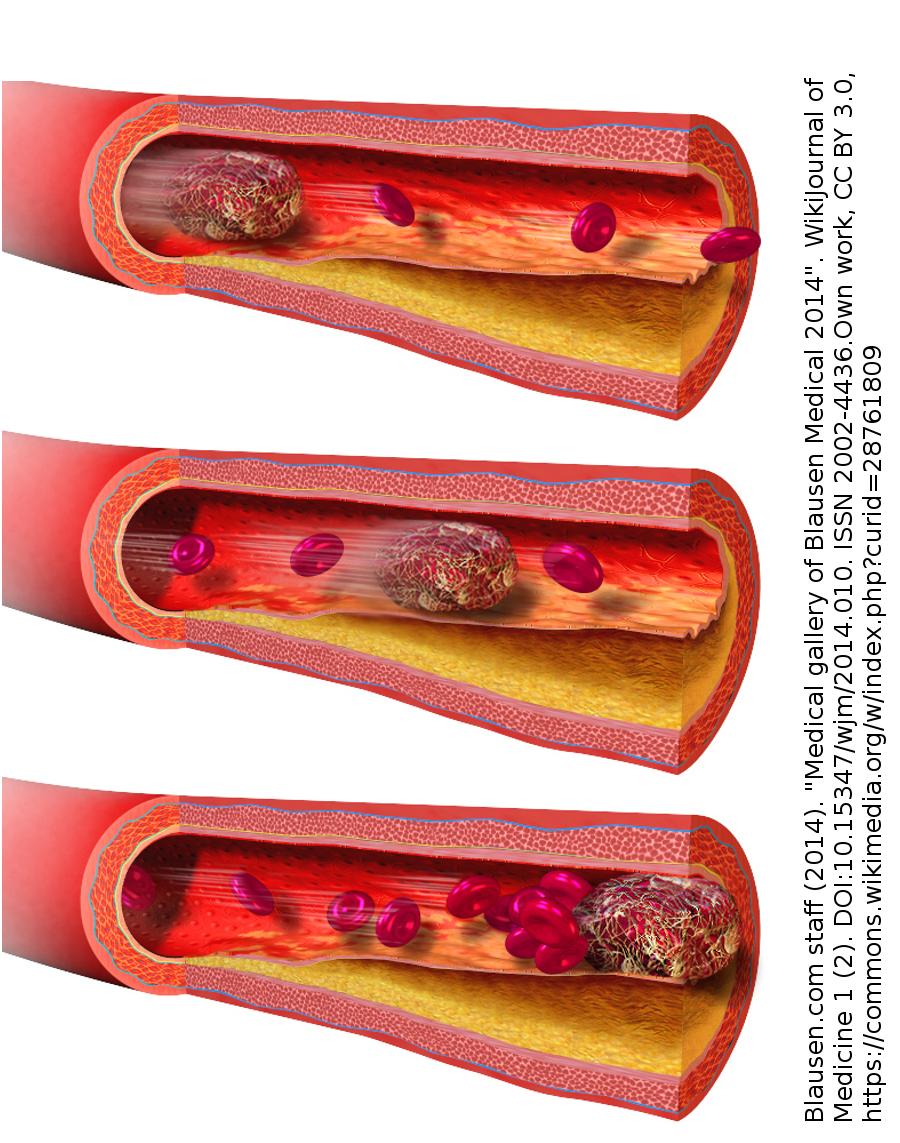 Abbildung 5: Blutgerinnsels, das zu einer Embolie führt